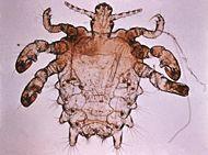 pthiruspubis