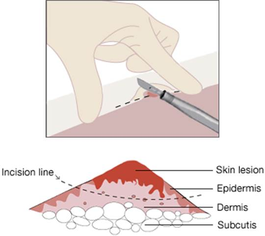 representation of a shave biopsy